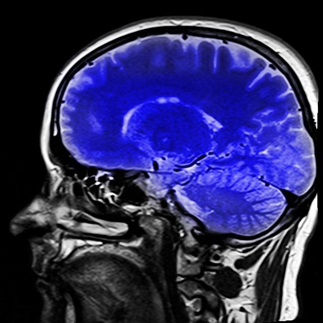 Esta es la diferencia entre un accidente isquémico transitorio y un infarto cerebral (ictus)
