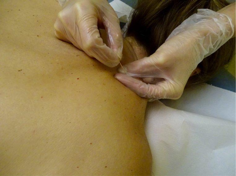 ¿Por qué es tan frecuente las patologías de hombro? Se debe a que es una articulación muy funcional, esférica y; por su amplio rango de movimiento, de las más móviles